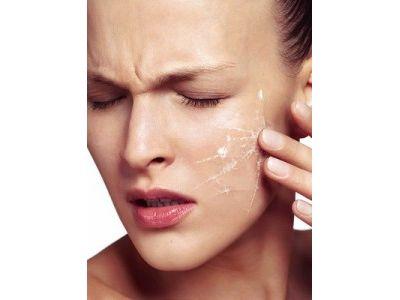 Внимание: чувствительная кожа! Особенности регулярного ухода.