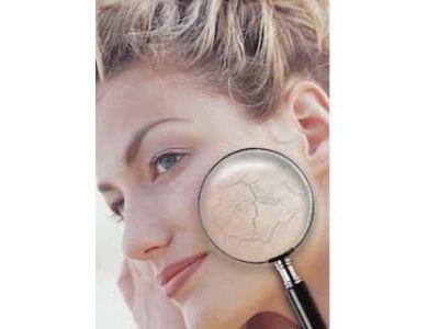 Сухая кожа: какие причины этой проблемы